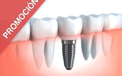 Implante y corona definitiva $590.000