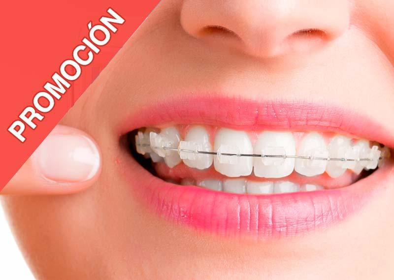 promocion-ortodoncia